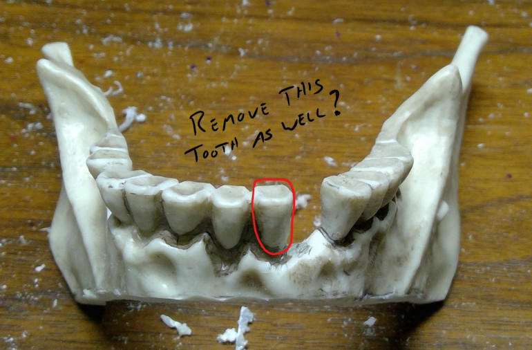 Remove another tooth?